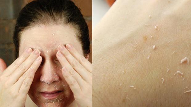 Chính bạn đang tự tay phá hủy làn da của mình nếu mắc phải các thói quen sau - Ảnh 3.