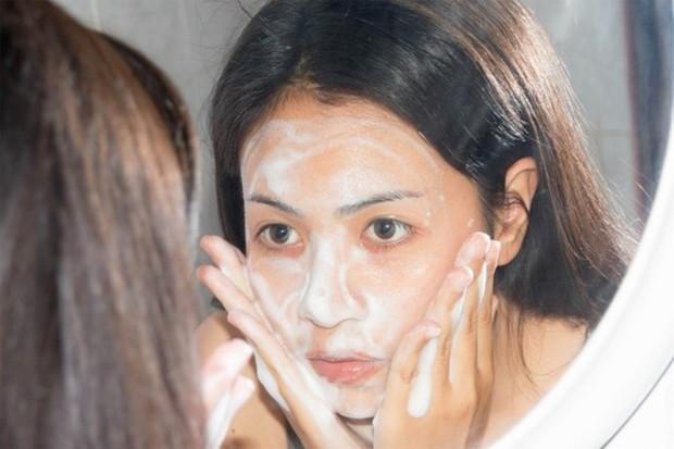 Mụn ẩn lấm tấm trên mặt khiến bạn mất tự tin và đây là cách khắc phục triệt để - Ảnh 2.