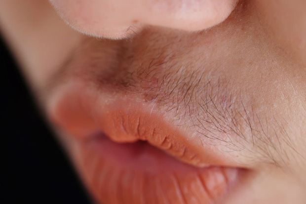Cơ thể mọc lông rậm bất thường có thể là do một trong những nguyên nhân tiềm ẩn sau - Ảnh 4.