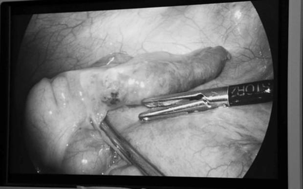 Hiếm gặp: Phát hiện xương cá đâm xuyên thành ruột khi mổ ruột thừa - Ảnh 1.