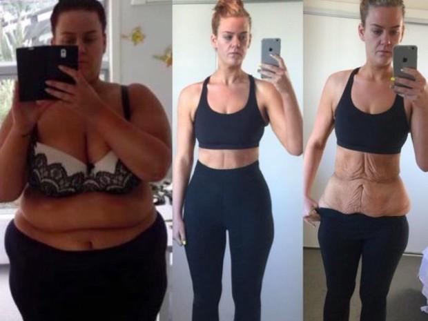 Sự thật trần trụi chưa ai nói cho bạn biết về giảm cân: Khi cân nặng trở thành nỗi ám ảnh - Ảnh 1.