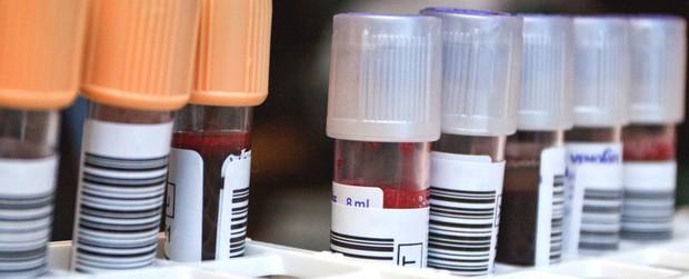Đã có bệnh nhân HIV thứ 2 trong lịch sử được chữa khỏi,  mở ra kỷ nguyên mới cho y học hiện đại - Ảnh 3.