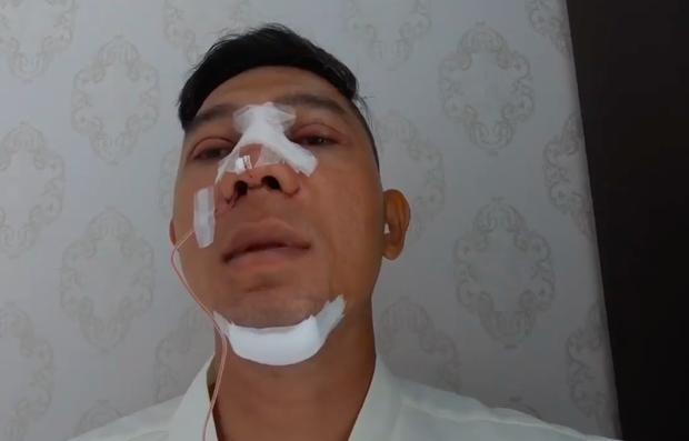 Lương Bằng Quang gây sốc khi thẩm mỹ 100% gương mặt ở tuổi 37 - Ảnh 2.