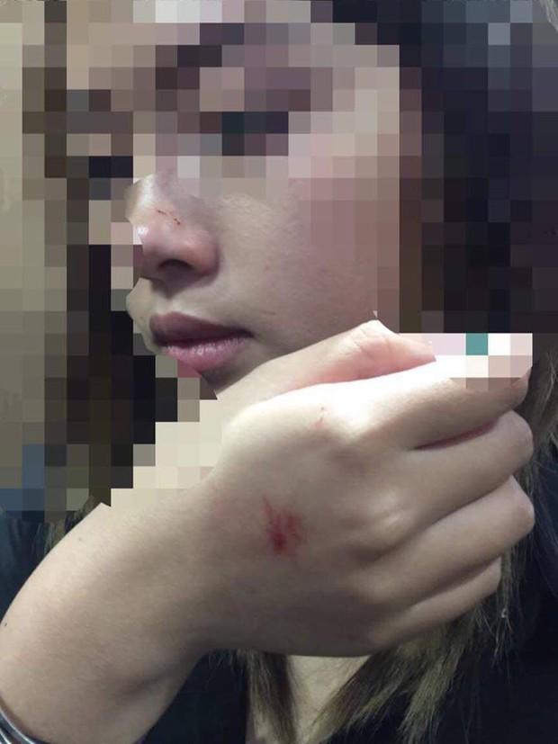 Hà Nội: Gã dê xồm cưỡng hôn cô gái trong thang máy chung cư, xong xuôi còn soi gương vuốt tóc, tỏ vẻ đắc ý - Ảnh 1.