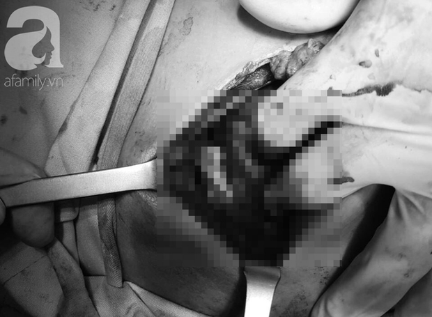 Tai nạn đau lòng: Đi làm mướn nuôi cha tâm thần, bé trai 13 tuổi bị thanh sắt máy cắt lúa đâm xuyên thấu ngực - Ảnh 5.