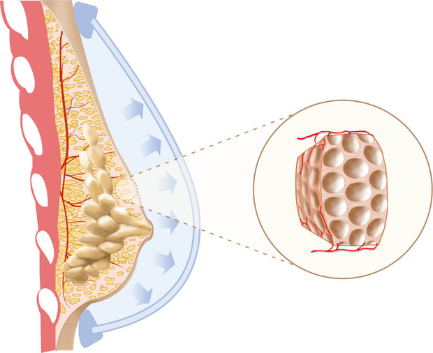 Có tới 4 loại u vú lành tính mà nữ giới hay gặp nhưng nên chữa trị từ sớm để ngăn ngừa nguy cơ phát triển thành ung thư vú - Ảnh 4.