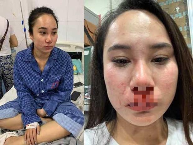 Luật sư của hot girl bị lột váy hành hung: Nhóm người phụ nữ không đưa ra được bằng chứng ngoại tình - Ảnh 1.