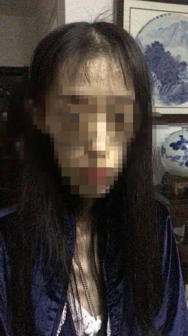 Cô gái 21 tuổi chỉ còn da bọc xương sau khi cố sức giảm cân liên tục suốt 3 năm - Ảnh 1.