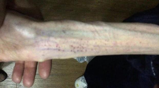 Cô gái 21 tuổi chỉ còn da bọc xương sau khi cố sức giảm cân liên tục suốt 3 năm - Ảnh 3.