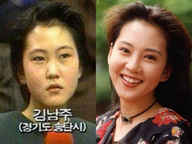 Những màn thay đổi ngoại hình gây sốc nhất lịch sử Kbiz: Kẻ từ kém sắc đổi đời thành nữ thần, người giảm 70kg - Ảnh 38.