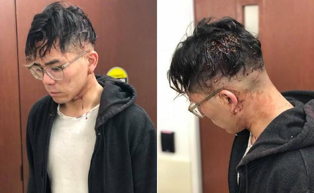 Nhân viên tố bị chủ nhà hàng Việt Nam tại Mỹ đánh đập tàn nhẫn vì xin nghỉ sau 2 năm làm việc quá sức - Ảnh 3.