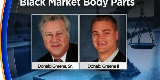 Hai cha con buôn bán bộ phận cơ thể người nhiễm HIV, viêm gan... với lí do phục vụ cho khoa học gây chấn động nước Mĩ - Ảnh 1.