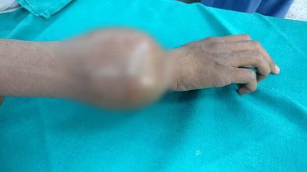 Cẩn thận với những triệu chứng cảnh báo bệnh ung thư xương đang ở giai đoạn cuối - Ảnh 3.