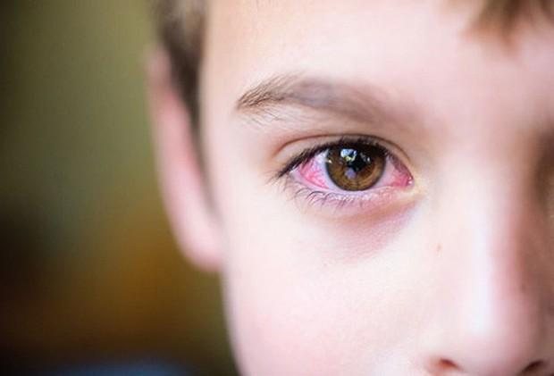 Đau mắt đỏ: Bệnh dễ gặp khi thời tiết sắp chuyển sang nóng bức - Ảnh 1.