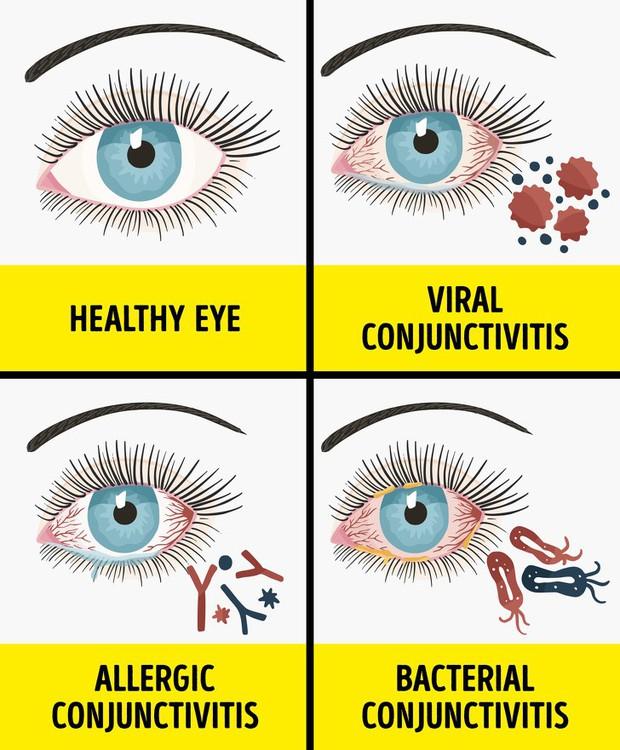Nhiều người hay nhầm lẫn những triệu chứng này với bệnh khác mà không nghĩ nó là biểu hiện của dị ứng - Ảnh 3.