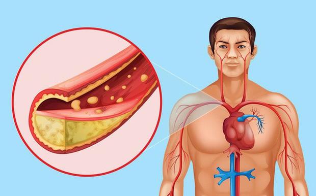 8 điều có thể xảy ra với cơ thể nếu bạn đều đặn ăn hạt lanh mỗi ngày - Ảnh 6.