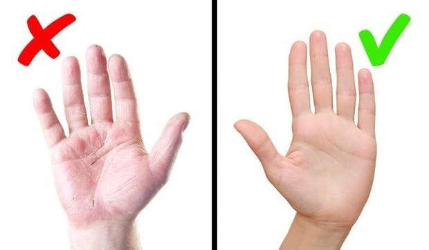 Cẩn thận với những bệnh nguy hiểm được thông báo qua dấu hiệu bất thường trên làn da - Ảnh 6.