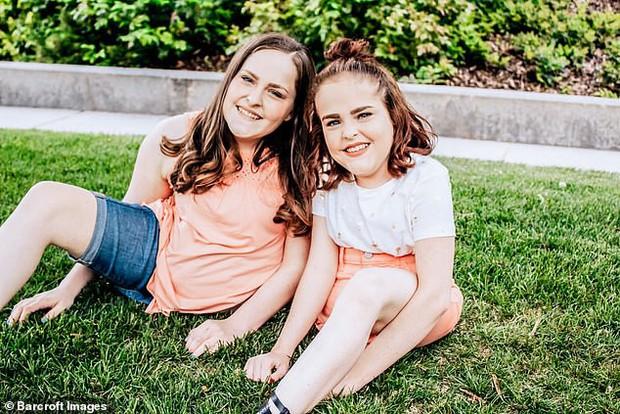 Cặp chị em từng dính liền bụng giờ đây hạnh phúc vì được tách đôi, có thể bước đi trên 1 chân của mình - Ảnh 4.