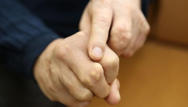 Chuyên gia chỉ cách kiểm tra sức khỏe thông qua những dấu hiệu bất thường ở bàn tay - Ảnh 4.