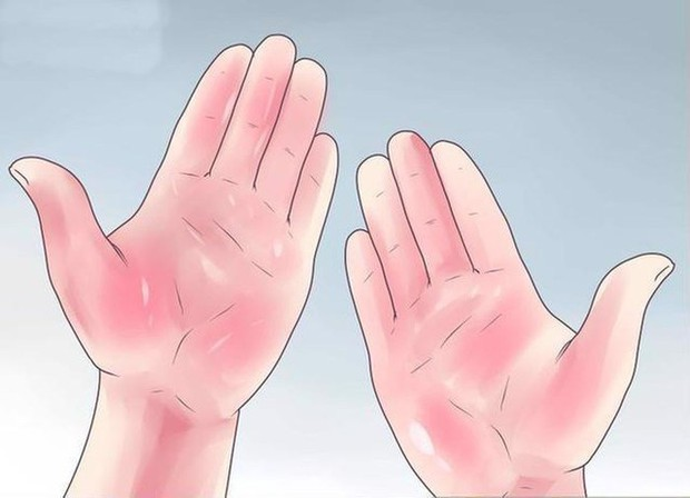 Chuyên gia chỉ cách kiểm tra sức khỏe thông qua những dấu hiệu bất thường ở bàn tay - Ảnh 7.