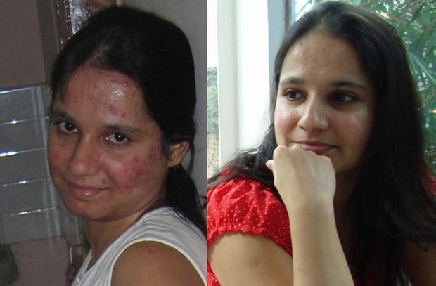 Bị mụn hơn 20 năm bác sĩ cũng chào thua nhưng với bí quyết này, làn da được cải thiện đáng kể chỉ sau 2 tháng - Ảnh 1.