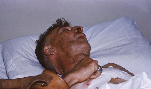 Tiêm phòng bệnh dại khi bị chó cắn: Quy trình tiêm và giá cả cần nắm rõ - Ảnh 4.