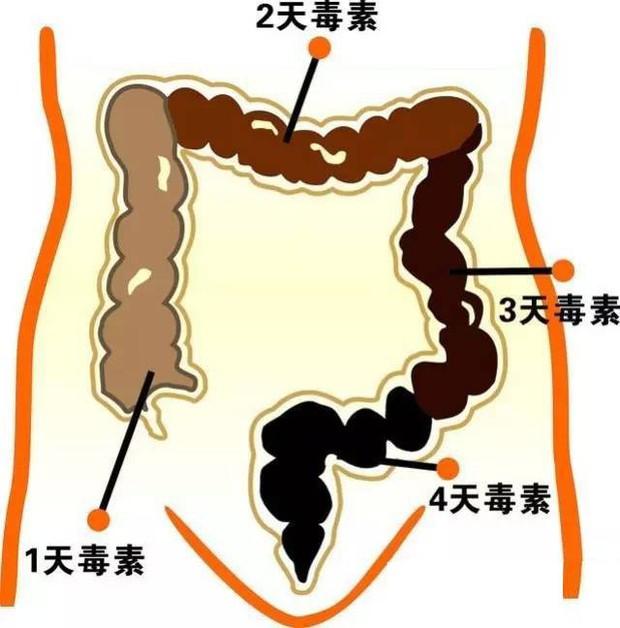 Cô gái Trung Quốc bị táo bón nặng chỉ vì thói quen mà giới trẻ thường hay mắc phải - Ảnh 1.