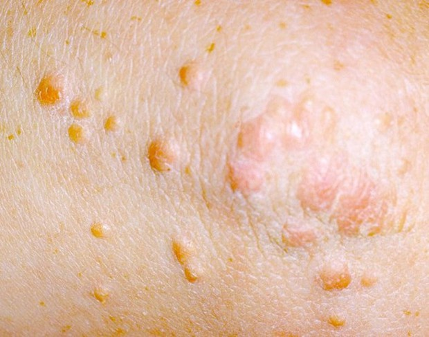 6 biểu hiện bất thường trên da đang ngầm cảnh báo nhiều vấn đề sức khỏe - Ảnh 9.