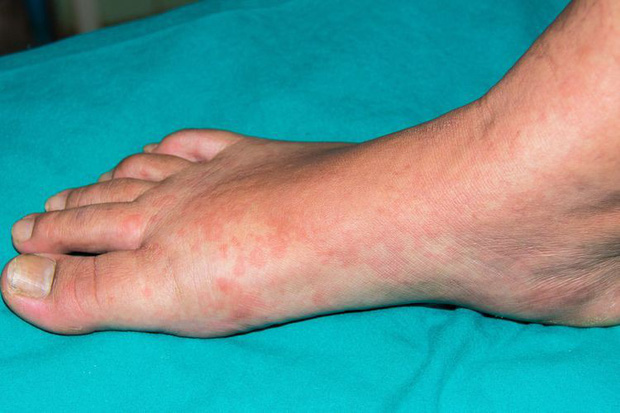 6 biểu hiện bất thường trên da đang ngầm cảnh báo nhiều vấn đề sức khỏe - Ảnh 11.