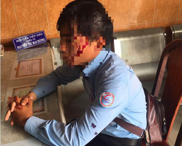 Bị chó cắn khi đi lấy số nước, nam nhân viên còn bị đánh vỡ đầu - Ảnh 1.