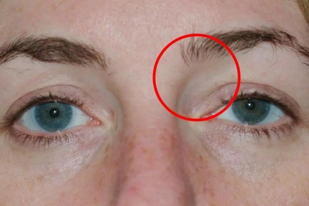 Người phụ nữ 42 tuổi có u nang ở mắt do đeo thứ này khi chơi thể thao - Ảnh 3.