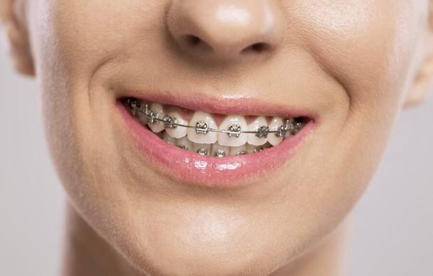 Giải mã những loại hình niềng răng đang được giới trẻ tìm kiếm nhiều nhất hiện nay - Ảnh 3.