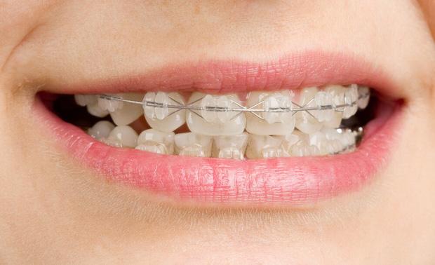 Giải mã những loại hình niềng răng đang được giới trẻ tìm kiếm nhiều nhất hiện nay - Ảnh 4.