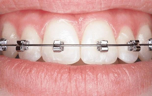 Giải mã những loại hình niềng răng đang được giới trẻ tìm kiếm nhiều nhất hiện nay - Ảnh 5.