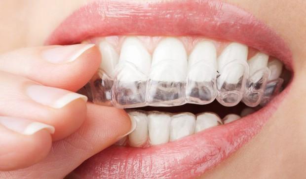 Giải mã những loại hình niềng răng đang được giới trẻ tìm kiếm nhiều nhất hiện nay - Ảnh 7.
