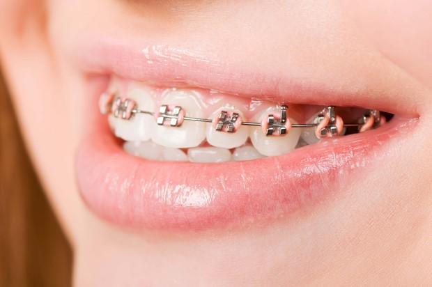 Giải mã những loại hình niềng răng đang được giới trẻ tìm kiếm nhiều nhất hiện nay - Ảnh 2.