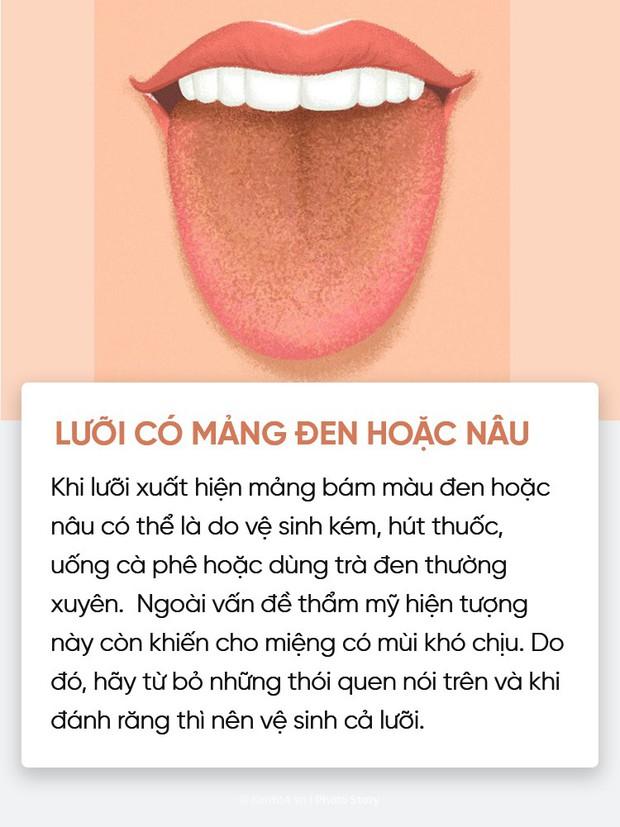 Đoán nhanh tình trạng sức khoẻ của bạn thông qua màu sắc, trạng thái lưỡi - Ảnh 1.