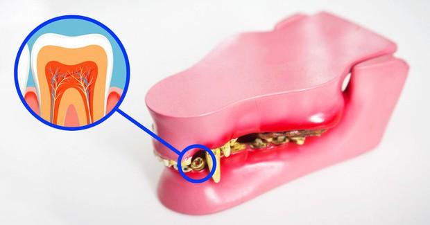 Không phải trồng răng giả nữa: Khoa học đã tìm ra cách giúp bạn mọc lại răng mới chỉ sau 2 tháng - Ảnh 2.