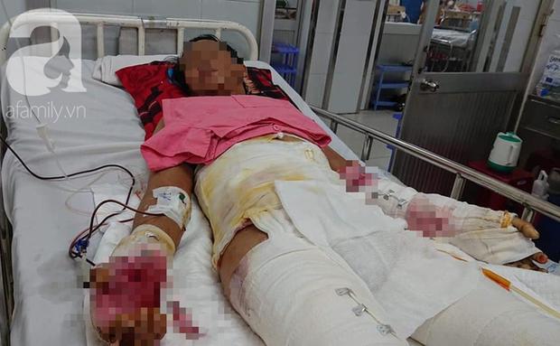 Đi phụ hồ nuôi vợ con, chồng bị điện giật té xuống đất phải cắt bỏ một chân, tính mạng nguy kịch - Ảnh 1.