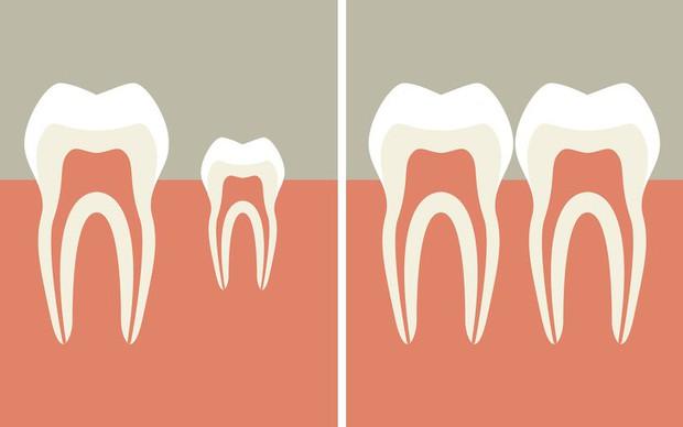 Không phải trồng răng giả nữa: Khoa học đã tìm ra cách giúp bạn mọc lại răng mới chỉ sau 2 tháng - Ảnh 3.