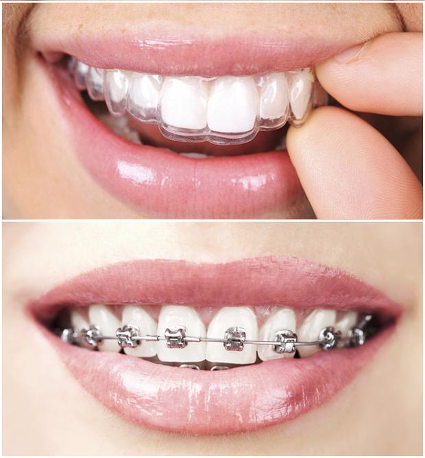 Niềng răng 30 triệu với 100 triệu: khác biệt thế nào, có phải càng đắt càng hiệu quả? - Ảnh 2.
