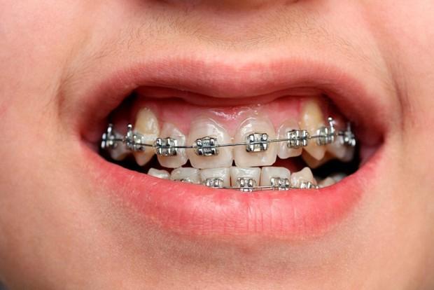 Niềng răng 30 triệu với 100 triệu: khác biệt thế nào, có phải càng đắt càng hiệu quả? - Ảnh 4.