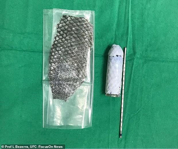Người chuyển giới đầu tiên trên thế giới được phẫu thuật tái tạo âm đạo bằng da cá rô phi, chia sẻ cảm giác như phụ nữ đích thực - Ảnh 4.