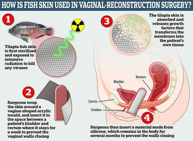 Người chuyển giới đầu tiên trên thế giới được phẫu thuật tái tạo âm đạo bằng da cá rô phi, chia sẻ cảm giác như phụ nữ đích thực - Ảnh 7.