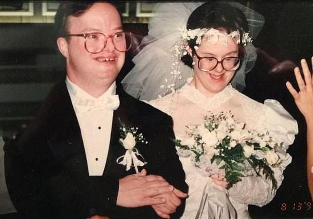 Cặp vợ chồng mắc hội chứng Down kề cận bên nhau suốt 25 năm, vượt qua mọi sóng gió và chỉ chia xa khi người chồng qua đời - Ảnh 2.
