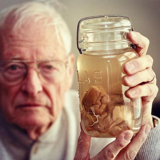Câu chuyện về những thứ kỳ quái nhất từng được đem ra trưng bày trong bảo tàng: Não, thủ cấp và bộ phận sinh dục con người - Ảnh 1.