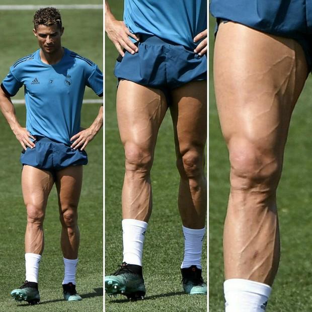 Sửng sốt trước hình ảnh đôi chân chằng chịt dây điện của VĐV xe đạp nổi tiếng, kinh hãi đến mức cặp giò của Ronaldo vẫn không là đối thủ - Ảnh 4.