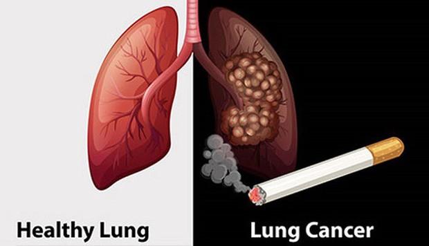 Cảnh báo: Gần 97% số ca ung thư phổi tại Việt Nam có hút thuốc lá - Ảnh 1.