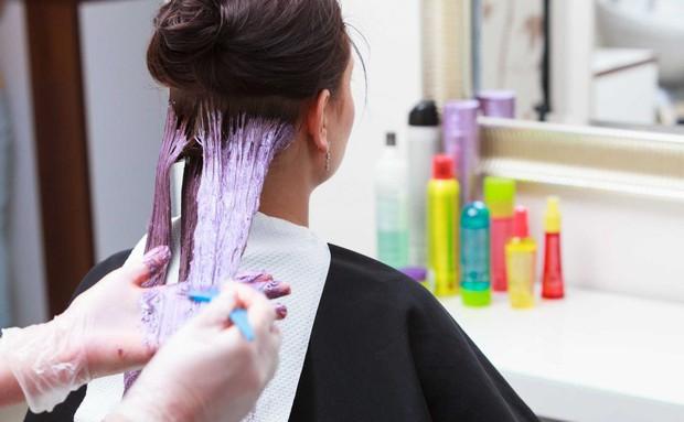 Cô gái 21 tuổi bị bỏng da đầu nghiêm trọng, tóc rụng hói nguyên mảng dài sau khi đi nhuộm tóc về - Ảnh 1.