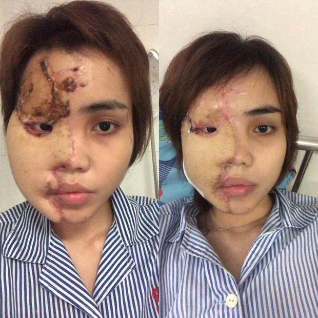 Đã bắt giam cựu thiếu úy Công an trong vụ tạt axit khiến vợ sắp cưới bị biến dạng hoàn toàn gương mặt - Ảnh 1.